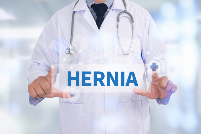 Exercises to Avoid After Hernia Surgery